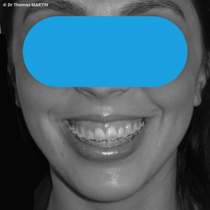 La Chirurgie reconstructrice et rparatrice du visage